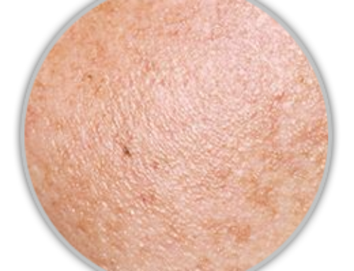 Hyperpigmentation – Drug Causes During Chemotherapy
