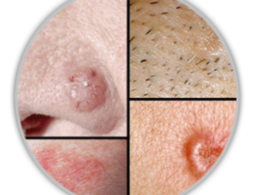 Basal Cell Carcinoma – Who Gets It?